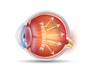 cross section graphic of eyeball showing pressure on the back of the eyeball